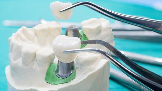 Bridge Dentaire Collé : quel remboursement par l'assurance maladie et la mutuelle santé ?